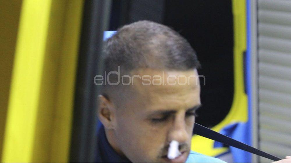 Vitolo sufre una fractura de los huesos propios de la nariz.